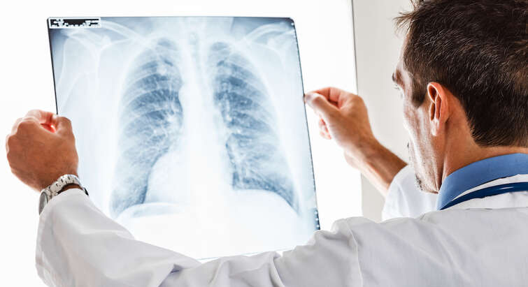 Doctor analysing X-ray