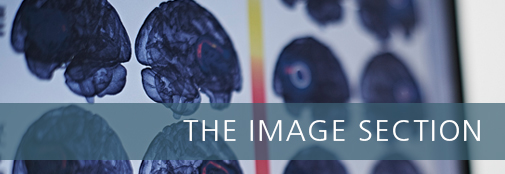 Topbanner with picture of brain scans